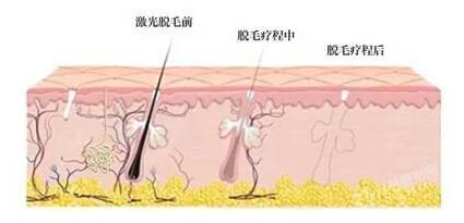 双屏opt脱毛仪,广州美丽加,永远脱毛,完美脉冲技术,瓦解皮肤暗沉,毛孔粗大,产品工作原理,激光脱毛原理图