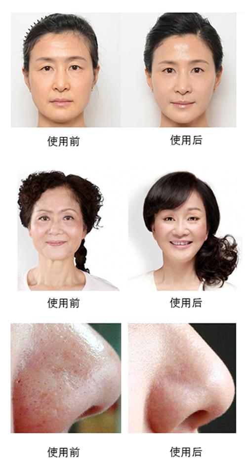 广州美丽加,恩盛小气泡美容仪器,深层清洁,美白嫩肤,保湿补水,收缩毛孔,祛黑头粉刺产品效果图