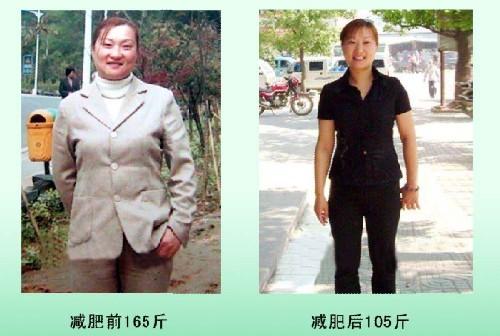 减肥案例三