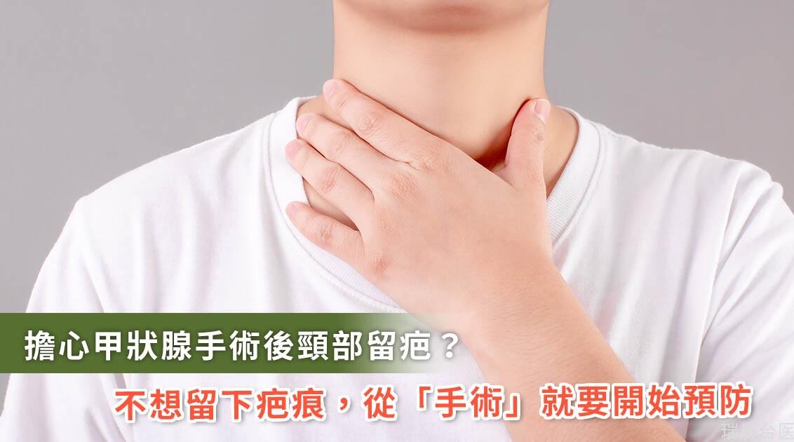 怕頸部疤痕不敢動甲狀腺手術!想要不留疤「手術」就要開始預防