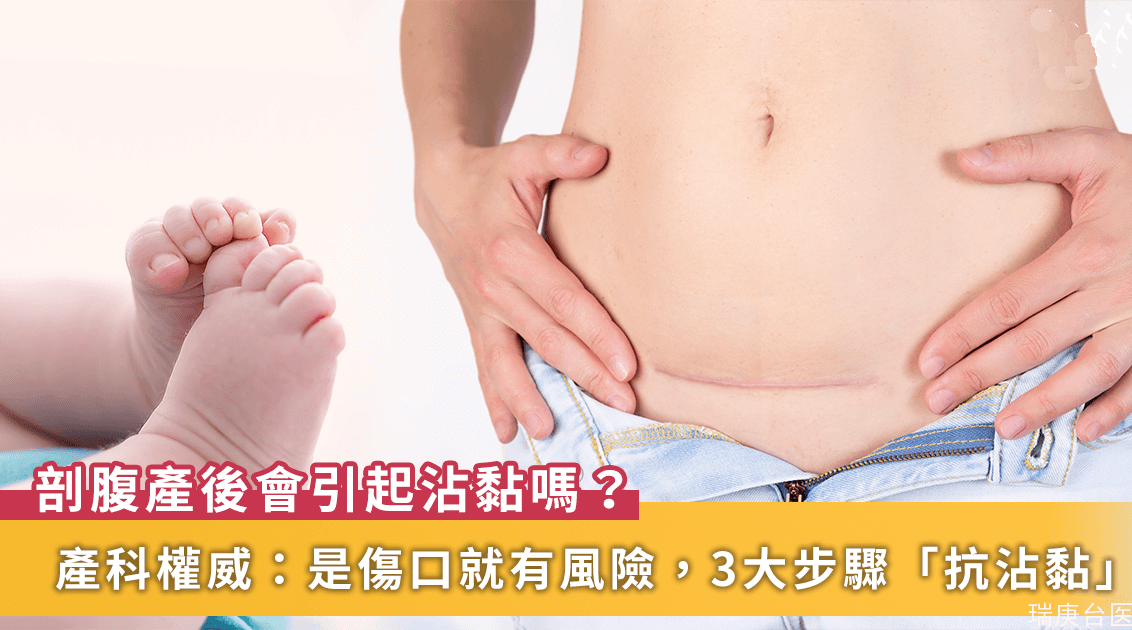 剖腹產后會有沾黏風險!臺灣長庚醫院產科權威提醒「抗沾黏」3大步驟