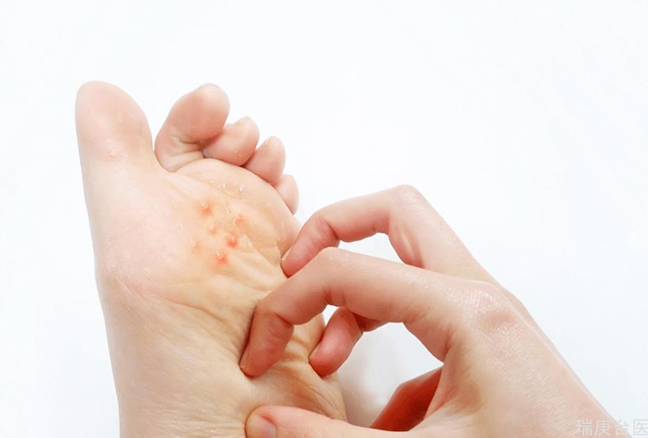 如何預防汗皰疹?皮膚科醫:愛清潔者是好發族群